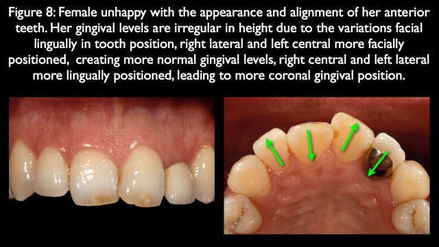 unacceptable apical gingival margin