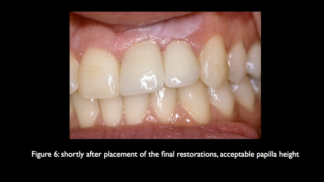 replacing missing central lateral incisors