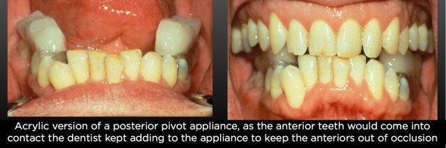 acrylic posterior pivot appliance