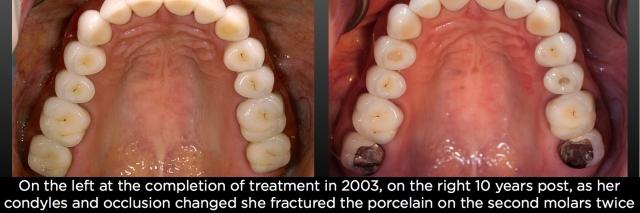 fractured porcelain