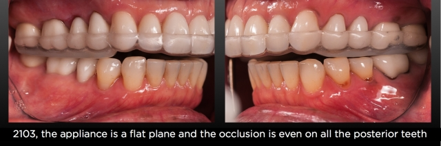 posterior occlusion