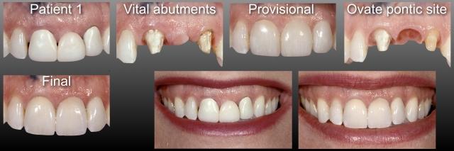 fixed partial denture dental patient