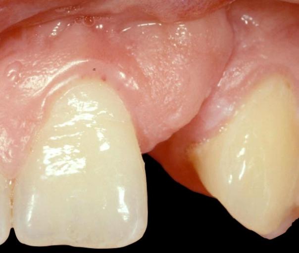 Best treatment for implant patient?