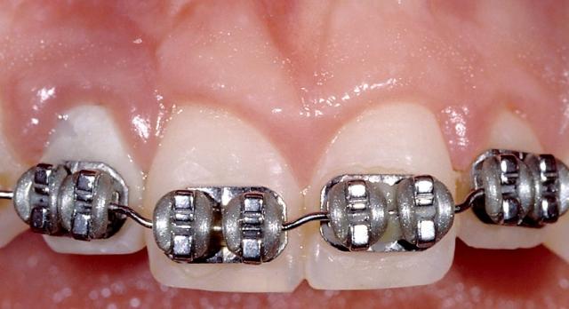 Orthodontics may be necessary