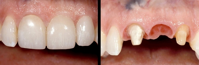 Dental restoration may be needed