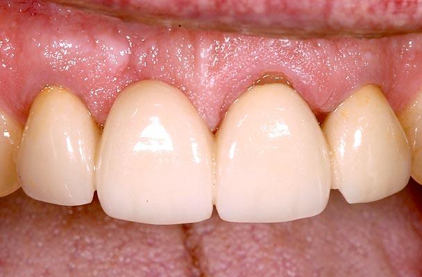 Dental crown survival rates