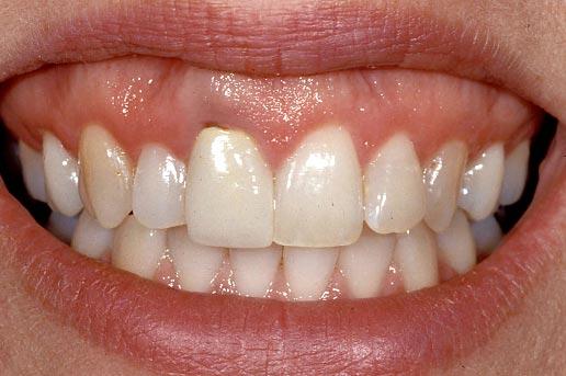 Dental implant photo