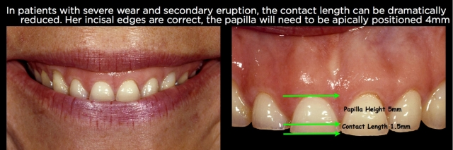 Over-eruption following tooth wear Figure 26