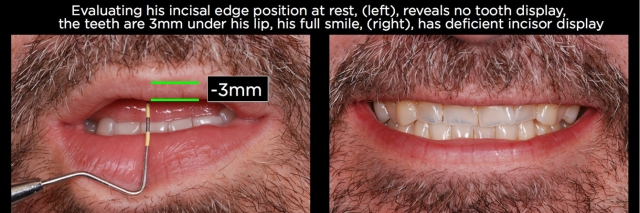 Over-eruption following tooth wear Figure 7