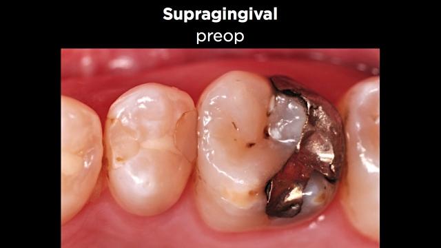 Facial Margin Placement Figure 1