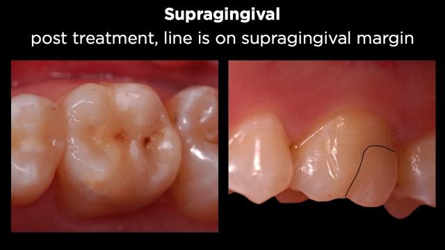 Facial Margin Treatment Figure 3