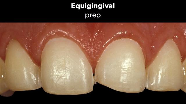Facial Margin Placement Figure 5