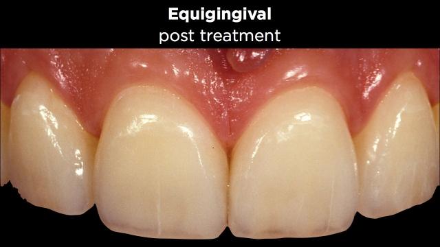 Facial Margin Placement Figure 6