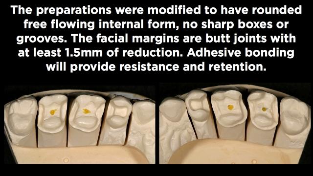 Preparation Design and Facial Margin Placement Part 2 Figure 2