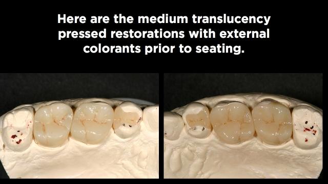 Preparation Design and Facial Margin Placement Part 2 Figure 3