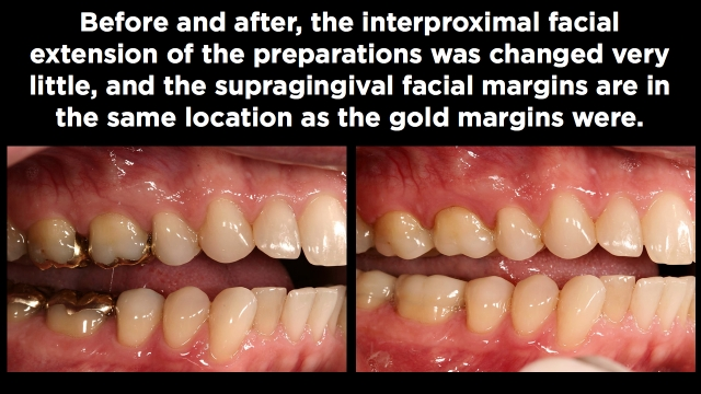 Preparation Design and Facial Margin Placement Part 2 Figure 5
