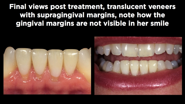Facial Margin Placement Figure 3