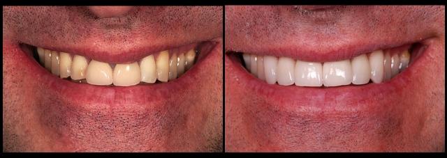 facial margin placement figure 7
