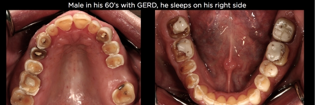 Tooth erosion Figure 2