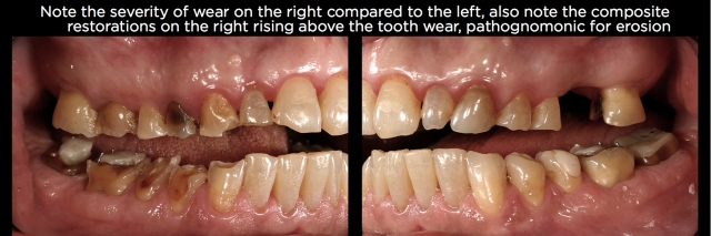 Tooth erosion Figure 3