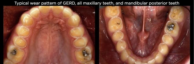 Tooth erosion Figure 4