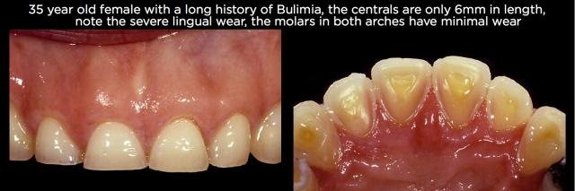 Tooth erosion Figure 5