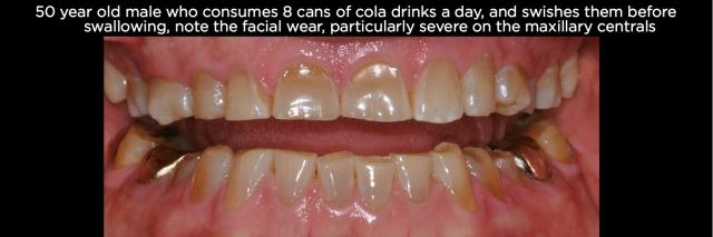 Tooth erosion Figure 6