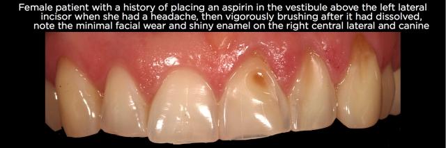 Tooth erosion Figure 10