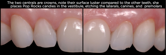 Tooth erosion Figure 11