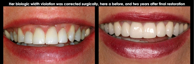 surgical correction biologic width