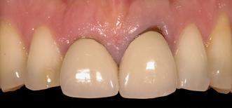 biologic width restorative margin placement