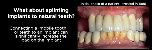 Connecting teeth and implants Figure 4