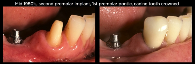 Connecting teeth and implants Figure 9