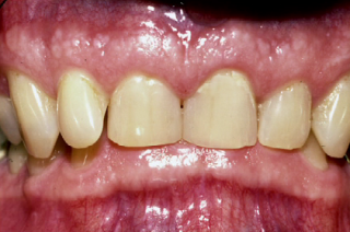fix deep overbite in wear patients