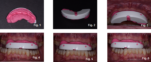temporary occlusal appliances figures 1-6