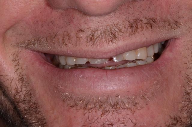 A tooth wear case - Figure 3