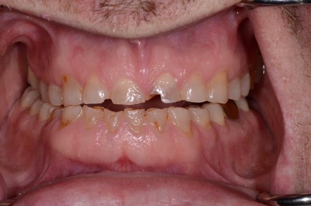 A tooth wear case - Figure 5