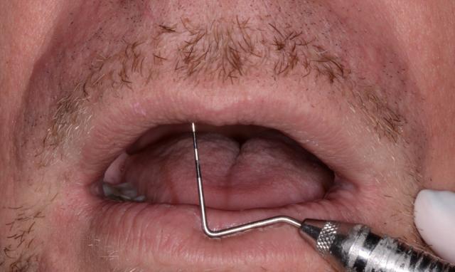 A tooth wear case - Figure 7