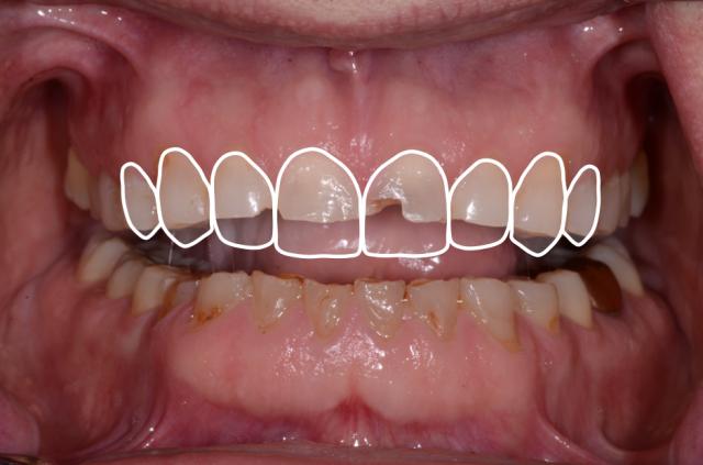 A tooth wear case - Figure 8