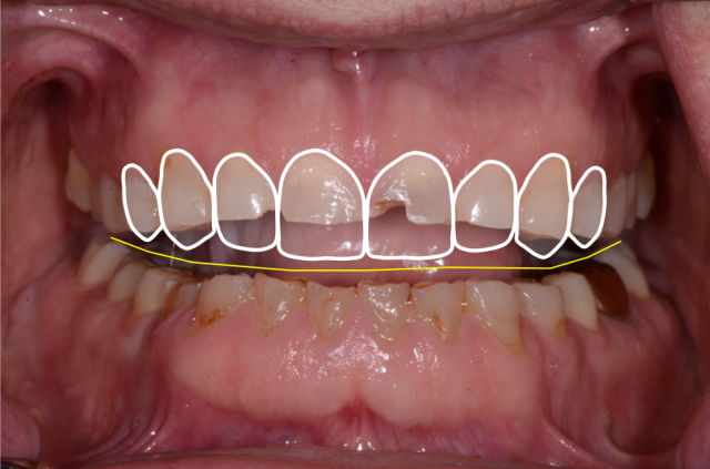 A tooth wear case - Figure 9