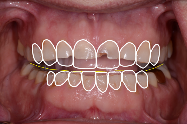 A tooth wear case - Figure 10