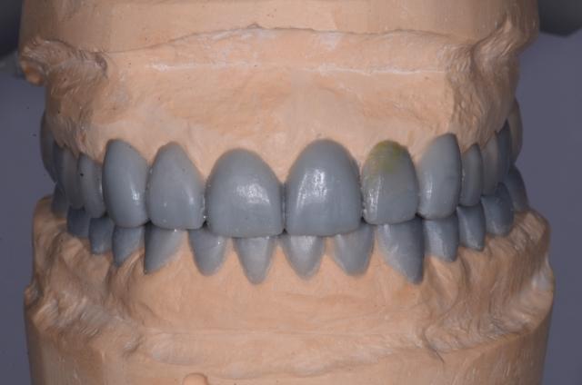 A tooth wear case - Figure 11
