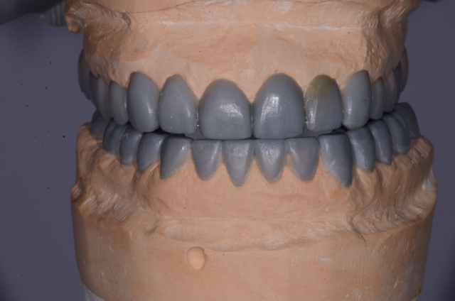 A tooth wear case - Figure 12