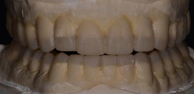 A tooth wear case - Figure 13
