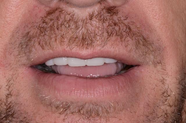 A tooth wear case - Figure 15