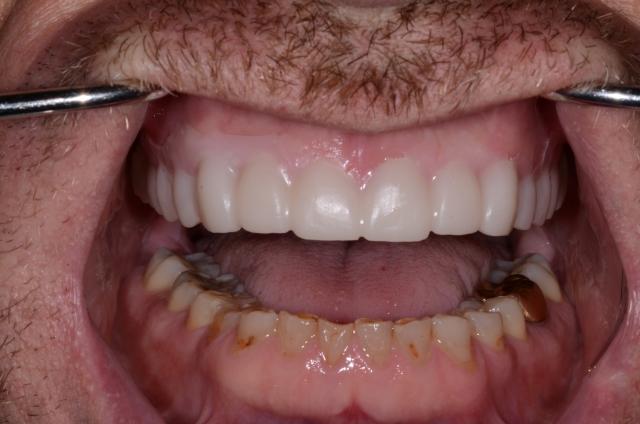 A tooth wear case - Figure 16
