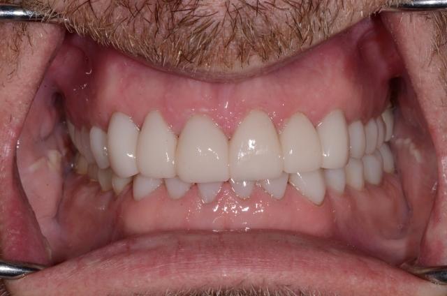 A tooth wear case - Figure 17
