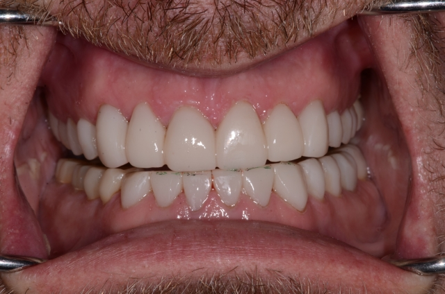 A tooth wear case - Figure 19