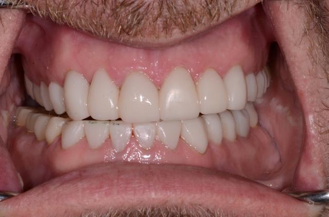 A tooth wear case - Figure 20