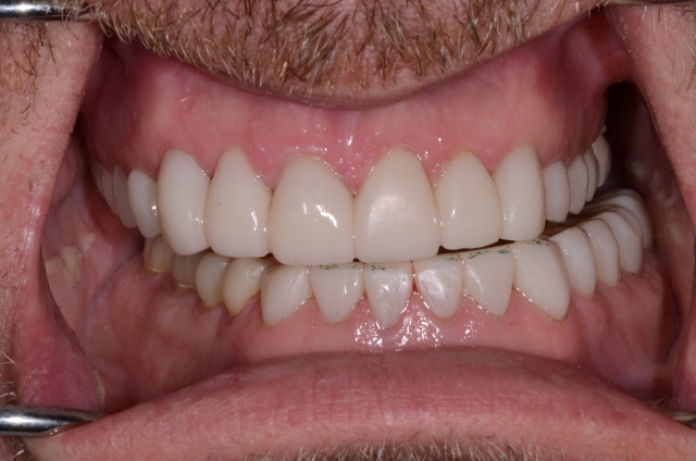 A tooth wear case - Figure 21